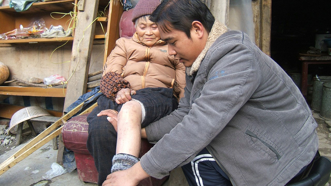 Handicap International Chine. Réadaptation d'une victime de séisme